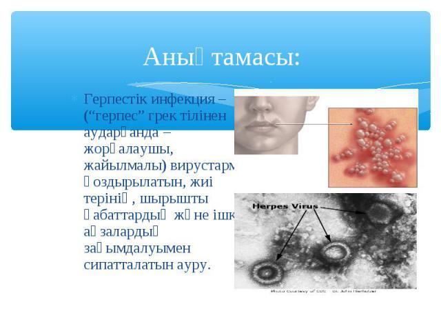 """Герпестік инфекция – (""""герпес"""" грек тілінен аударғанда – жорғалаушы, жайылмалы) вирустармен қоздырылатын, жиі терінің, шырышты қабаттардың және ішкі ағзалардың зақымдалуымен сипатталатын ауру. Герпестік инфекция – (""""герпес"""" грек тілінен аударғанда –…"""