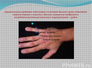 Дерматомикозы (грибковые заболевания) составляют большую группу заболеваний кожн