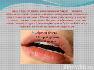 Герпес(простой герпес, или пузырьковый лишай) — вирусное заболевание с хар