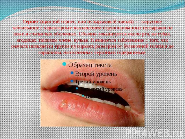 Герпес(простой герпес, или пузырьковый лишай) — вирусное заболевание с характерным высыпанием сгруппированных пузырьков на коже и слизистых оболочках. Обычно локализуется около рта, на губах, ягодицах, половом члене, вульве. Начинается заболев…