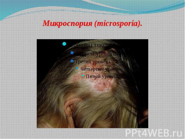 Микроспория (microsporia).