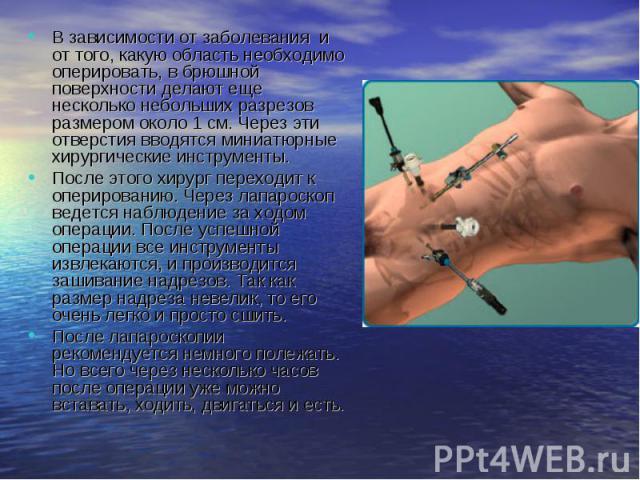 В зависимости от заболевания и от того, какую область необходимо оперировать, в брюшной поверхности делают еще несколько небольших разрезов размером около 1 см. Через эти отверстия вводятся миниатюрные хирургические инструменты. В зависимости от заб…