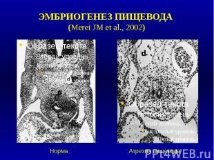 ЭМБРИОГЕНЕЗ ПИЩЕВОДА (Merei JM et al., 2002)