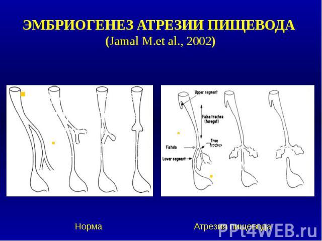 ЭМБРИОГЕНЕЗ АТРЕЗИИ ПИЩЕВОДА (Jamal M.et al., 2002)