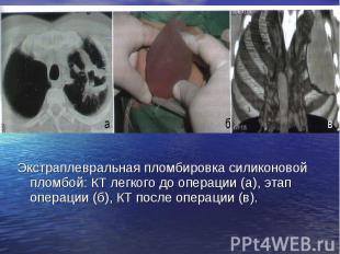 Экстраплевральная пломбировка силиконовой пломбой: КТ легкого до операции (а), э