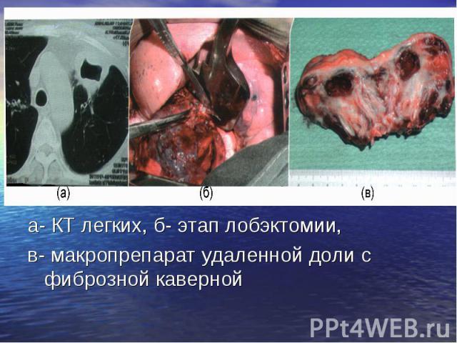 а- КТ легких, б- этап лобэктомии, а- КТ легких, б- этап лобэктомии, в- макропрепарат удаленной доли с фиброзной каверной