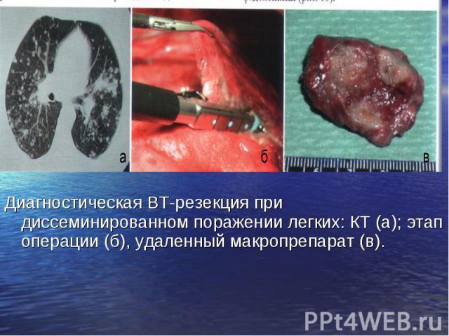 Диагностическая ВТ-резекция при диссеминированном поражении легких: КТ (а); этап операции (б), удаленный макропрепарат (в). Диагностическая ВТ-резекция при диссеминированном поражении легких: КТ (а); этап операции (б), удаленный макропрепарат (в).