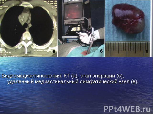 Видеомедиастиноскопия: КТ (а), этап операции (б), удаленный медиастинальный лимфатический узел (в). Видеомедиастиноскопия: КТ (а), этап операции (б), удаленный медиастинальный лимфатический узел (в).