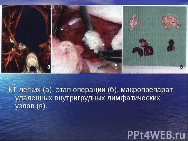 КТ легких (а), этап операции (б), макропрепарат удаленных внутригрудных лимфатических узлов (в). КТ легких (а), этап операции (б), макропрепарат удаленных внутригрудных лимфатических узлов (в).