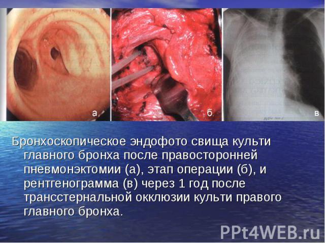 Бронхоскопическое эндофото свища культи главного бронха после правосторонней пневмонэктомии (а), этап операции (б), и рентгенограмма (в) через 1 год после трансстернальной окклюзии культи правого главного бронха. Бронхоскопическое эндофото свища кул…
