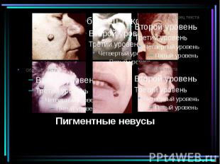 Пигментные невусы