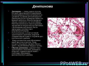 Дентинома Дентинома — очень редкая опухоль, который характеризуется медленным эк
