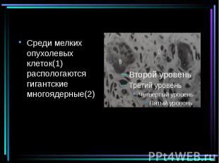 Среди мелких опухолевых клеток(1) распологаются гигантские многоядерные(2) Среди