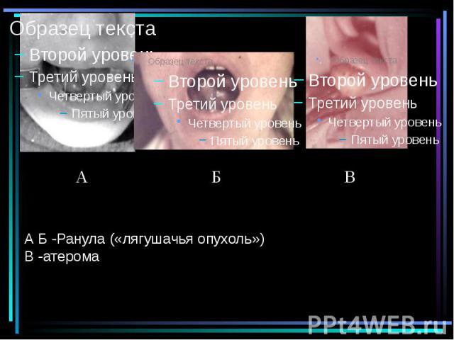 А Б -Ранула («лягушачья опухоль») В -атерома