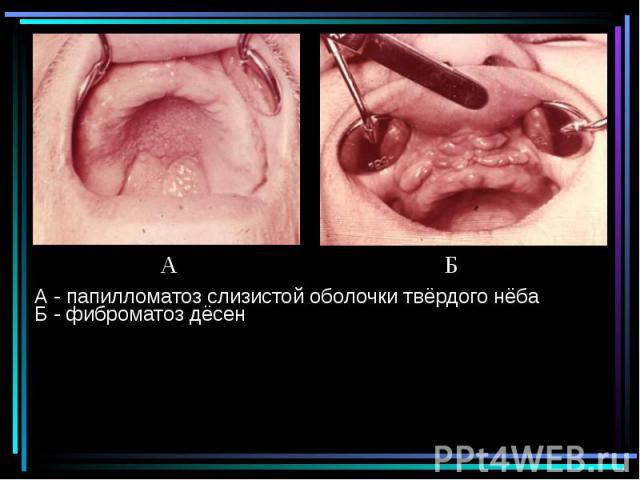 А - папилломатоз слизистой оболочки твёрдого нёба Б - фиброматоз дёсен