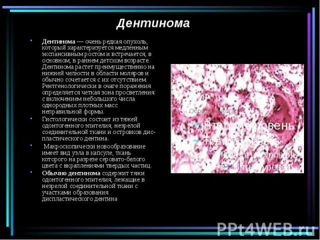 Дентинома Дентинома — очень редкая опухоль, который характеризуется медленным экспансивным ростом и встречается, в основном, в раннем детском возрасте. Дентинома растет преимущественно на нижней челюсти в области моляров и обычно сочетается с их отс…