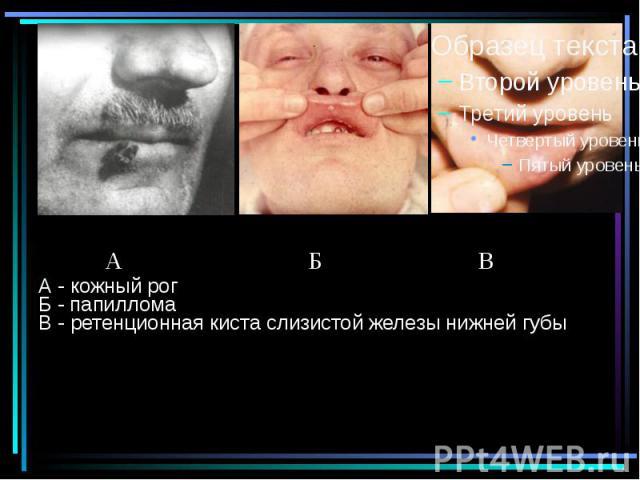 А - кожный рог Б - папиллома В - ретенционная киста слизистой железы нижней губы