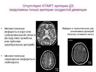 Отсутствуют КТ/МРТ критерии ДЭ, предложены только критерии сосудистой деменции М
