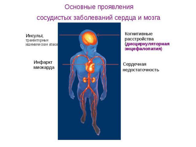 Основные проявления сосудистых заболеваний сердца и мозга