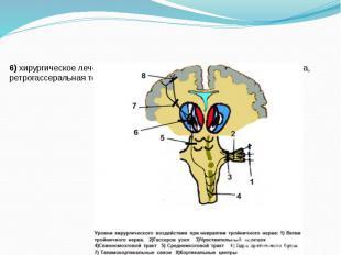 6) хирургическое лечение: микроваскулярная декомпрессия корешка нерва, ретрогасс