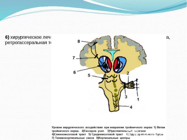 6) хирургическое лечение: микроваскулярная декомпрессия корешка нерва, ретрогассеральная терморизотомия, нервэкзерез.