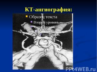 КТ-ангиография: