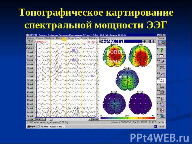 Топографическое картирование спектральной мощности ЭЭГ