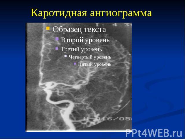 Каротидная ангиограмма