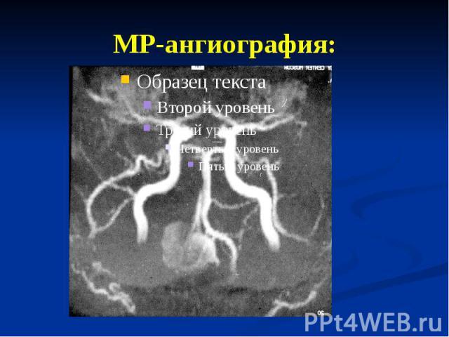 МР-ангиография: