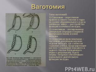 Типы ваготомий: Типы ваготомий: 1) Стволовая – пересечение правого и левого ство