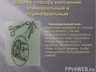 Эпиневральный шов – выделение начинают со стороны неизменённого участка проксима