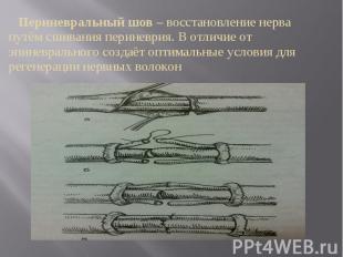 Периневральный шов – восстановление нерва путём сшивания периневрия. В отличие о