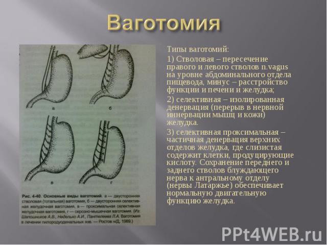 Типы ваготомий: Типы ваготомий: 1) Стволовая – пересечение правого и левого стволов n.vagus на уровне абдоминального отдела пищевода, минус – расстройство функции и печени и желудка; 2) селективная – изолированная денервация (перерыв в нервной иннер…