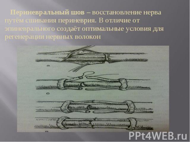 Периневральный шов – восстановление нерва путём сшивания периневрия. В отличие от эпиневрального создаёт оптимальные условия для регенерации нервных волокон Периневральный шов – восстановление нерва путём сшивания периневрия. В отличие от эпиневраль…