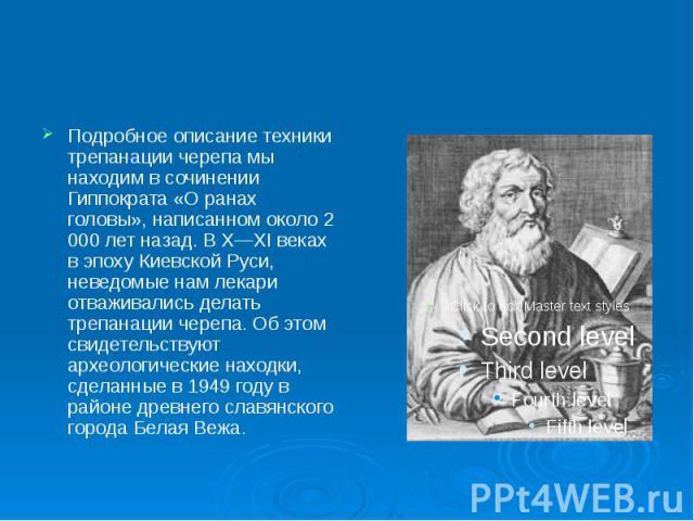 Подробное описание техники трепанации черепа мы находим в сочинении Гиппократа «О ранах головы», написанном около 2 000 лет назад. В X—XI веках в эпоху Киевской Руси, неведомые нам лекари отваживались делать трепанации черепа. Об этом свидетельствую…