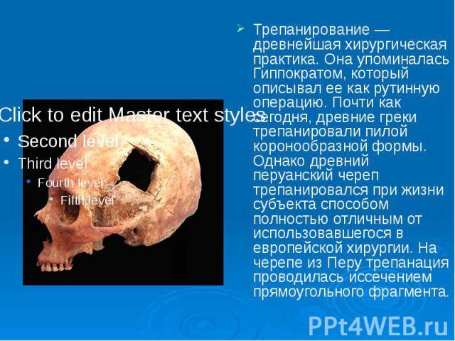 Трепанирование — древнейшая хирургическая практика. Она упоминалась Гиппократом, который описывал ее как рутинную операцию. Почти как сегодня, древние греки трепанировали пилой коронообразной формы. Однако древний перуанский череп трепанировался при…