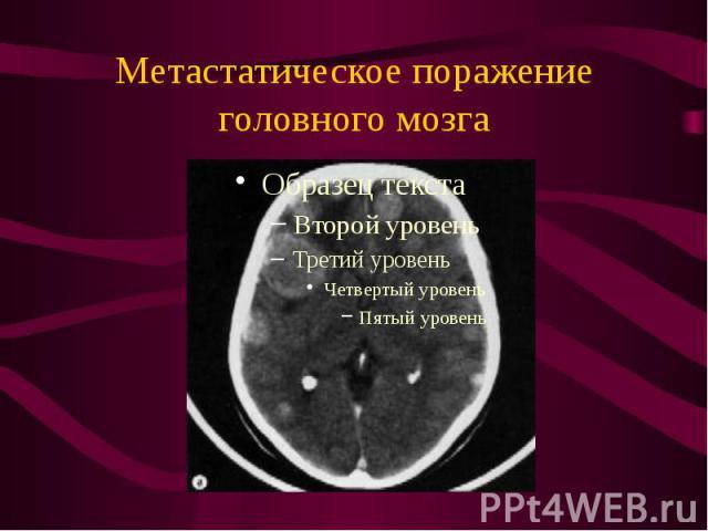 Метастатическое поражение головного мозга
