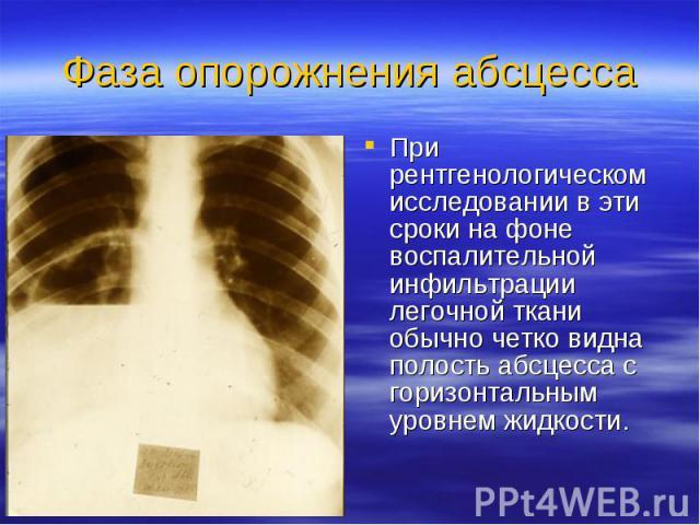 При рентгенологическом исследовании в эти сроки на фоне воспалительной инфильтрации легочной ткани обычно четко видна полость абсцесса с горизонтальным уровнем жидкости. При рентгенологическом исследовании в эти сроки на фоне воспалительной инфильтр…