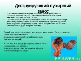 Деструирующий пузырный занос Врастание измененных ворсин хориона в миометрий (вп