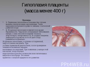 Гипоплазия плаценты (масса менее 400 г) Причины 1. Первичная гипоплазия в больши