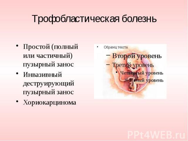 Трофобластическая болезнь Простой (полный или частичный) пузырный занос Инвазивный деструирующий пузырный занос Хориокарцинома