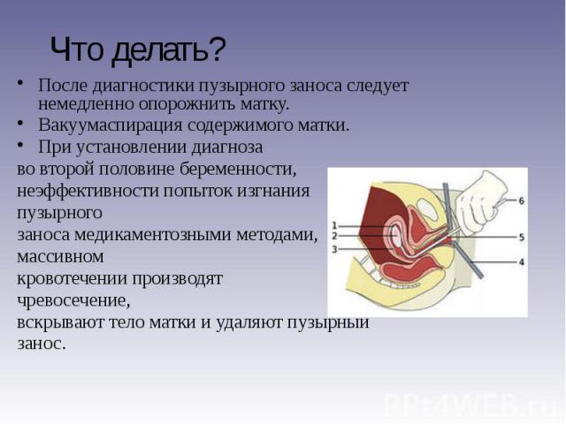 Что делать? После диагностики пузырного заноса следует немедленно опорожнить матку. Вакуумаспирация содержимого матки. При установлении диагноза во второй половине беременности, неэффективности попыток изгнания пузырного заноса медикаментозными мето…