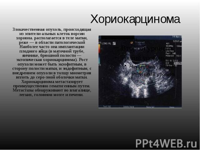 Хориокарцинома Злокачественная опухоль, происходящая из эпителиальных клеток ворсин хориона. располагается в теле матки, реже — в области патологической Наиболее часто она имплантации плодного яйца (в маточной трубе, яичнике, брюшной полости — …