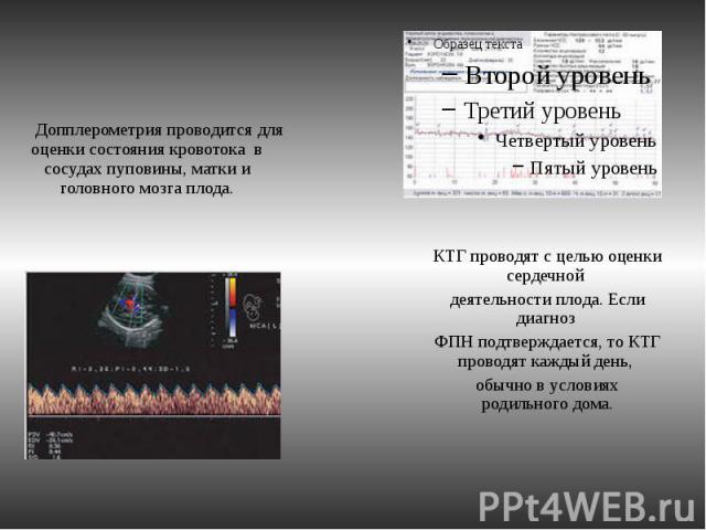 Допплерометрия проводится для оценки состояния кровотока в сосудах пуповины, матки и головного мозга плода. Допплерометрия проводится для оценки состояния кровотока в сосудах пуповины, матки и головного мозга плода.