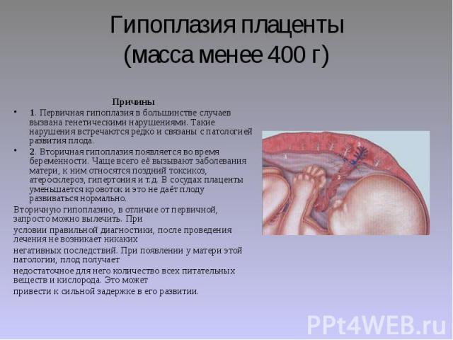 Гипоплазия плаценты (масса менее 400 г) Причины 1. Первичная гипоплазия в большинстве случаев вызвана генетическими нарушениями. Такие нарушения встречаются редко и связаны с патологией развития плода. 2. Вторичная гипоплазия появляется во время бер…