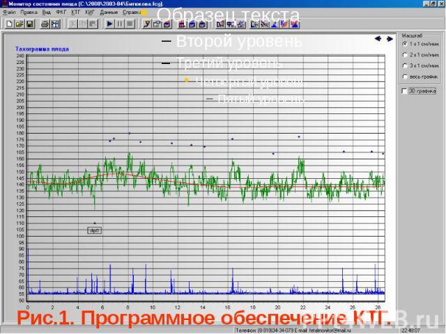 Рис.1. Программное обеспечение КТГ.