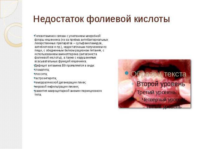 Недостаток фолиевой кислоты Гиповитаминоз связан с угнетением микробной флоры кишечника (из-за приёма антибактериальных лекарственных препаратов – сульфаниламидов, антибиотиков и пр.), недостаточным получением из пищи, с обедненным белком рационом п…