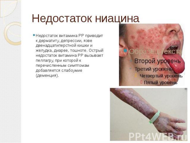 Недостаток ниацина Недостаток витамина PP приводит к дерматиту, депрессии, язве двенадцатиперстной кишки и желудка, диарее, тошноте. Острый недостаток витамина PP вызывает пеллагру, при которой к перечисленным симптомам добавляется слабоумие (деменция).