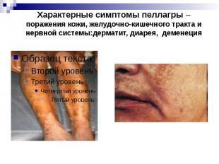 Характерные симптомы пеллагры – поражения кожи, желудочно-кишечного тракта и нер
