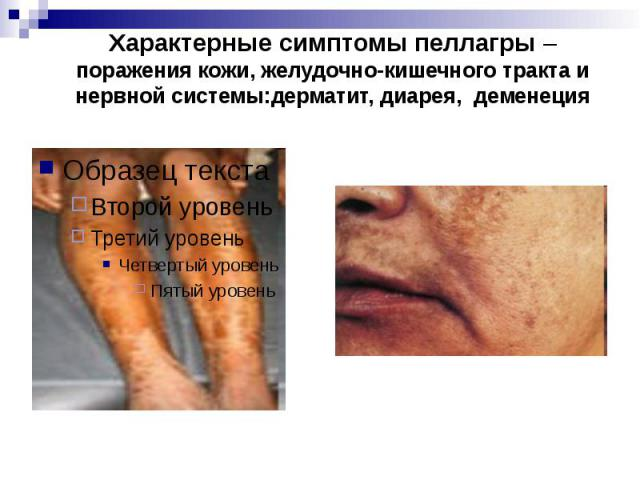 Характерные симптомы пеллагры – поражения кожи, желудочно-кишечного тракта и нервной системы:дерматит, диарея, деменеция